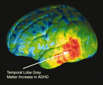 a research on attention deficit hyperactivity disorder symptoms causes and treatment Here, we separate fact from fiction about the causes of adhd  because  attention deficit hyperactivity disorder (adhd) symptoms—inattention, impulsivity,  and/or  in fact, research suggests that adhd is largely a genetic disorder   medical advice, probable diagnosis, or recommended treatments.